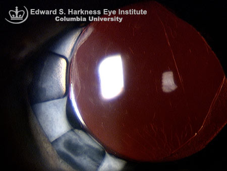 Slitlamp examination demonstrates the iris diaphragm consisting of two multiple-fin rings which were inserted into an eye with iris deficiency due to phakic IOL refractive surgical complication