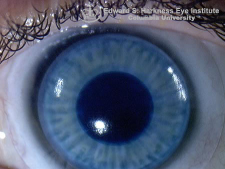Contact lens with artificial pupil