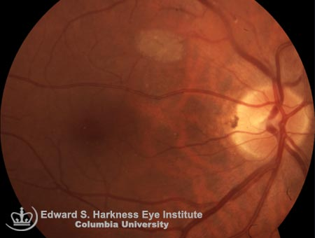 Astrocytic hamartoma demonstrating initial grayish, flat retinal lesion in the right eye and a typical glistening, yellow, mulberry-like lesion in the left eye.