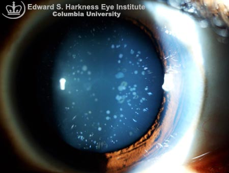 Congenital Blue Dot Cataract