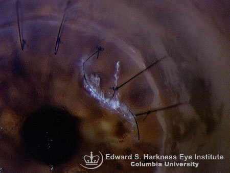 Broken interrupted suture with covering mucous strands 5 months after penetrating keratoplasty.