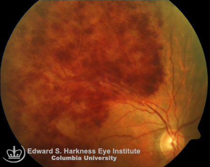 Branch retinal vein occlusion is involving the superior temporal quadrant.