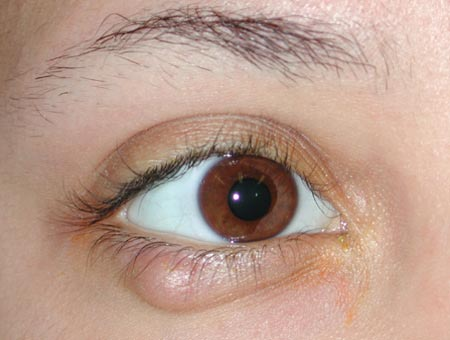 Chalazion in the right lower lid.