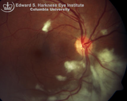 Cytomegalovirus retinitis demonstrates characteristic confluent areas of retinal whitening and vascular sheathings along the vascular arcades.