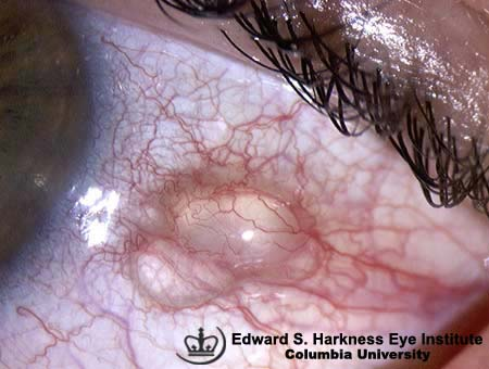 Conjunctival Cysts