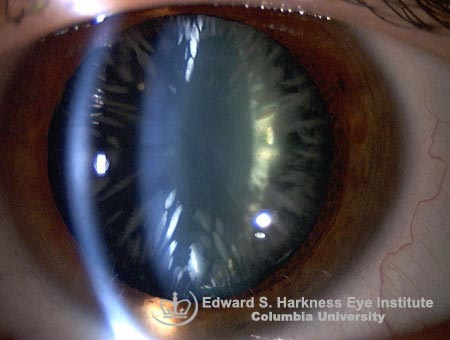 Cortical | Columbia Ophthalmology