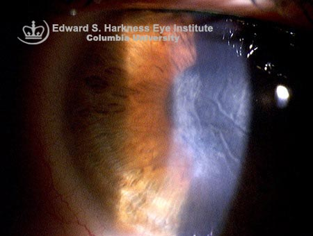 Corneal edema with Descemet's folds after phacoemulsification surgery.