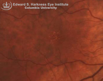 Fundus photograph demonstrates multiple hard drusen.