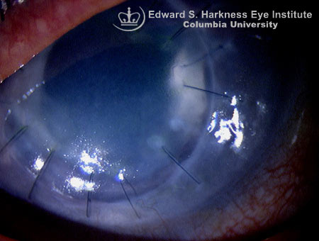 Primary graft failure with permanent corneal edema.