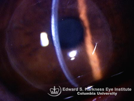 Epikeratophakia demonstrating a layer of corneal lenticule tissue over the host cornea.