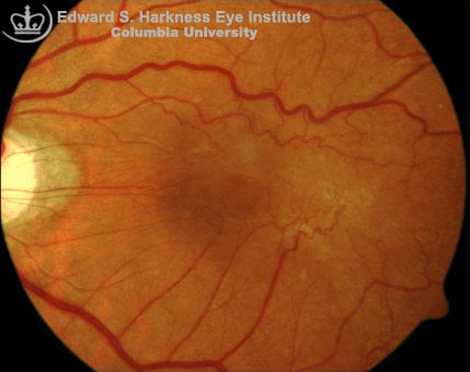 Fundus photograph and the OCT study of an epiretinal membrane.
