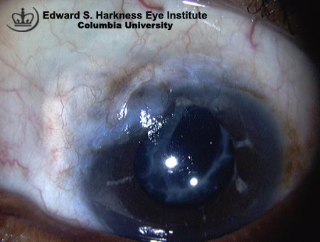 Scarred filtering bleb with absence of conjunctival microcysts.