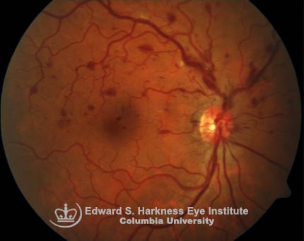 Superior Hemicentral Retinal Vein Occlusion