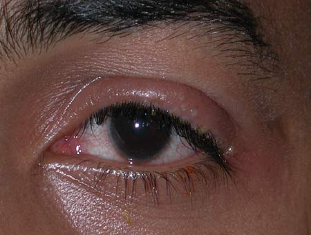 Herpes simplex blepharitis demonstrating clustered vesicles and ulcerated lesions on the upper lid.