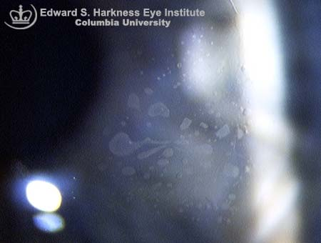 Slit lamp photograph demonstrating pearls of epithelial cells in the corneal flap interface post LASIK surgery.