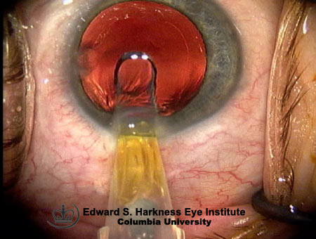 Intraocular Lens Insertion