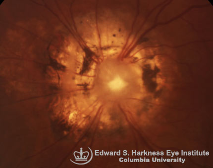 Morning Glory Anomaly of the Optic Nerve