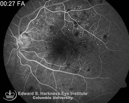 Nonproliferative diabetic retinopathy demonstrating microaneurysms and dot blot hemorrhages.