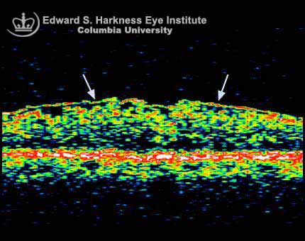 Macular Diseases  OCT study of an epiretinal membrane and the color fundus photograph.