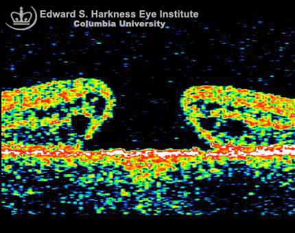 Macular Diseases OCT study and the corresponding color fundus photograph of a macular hole.