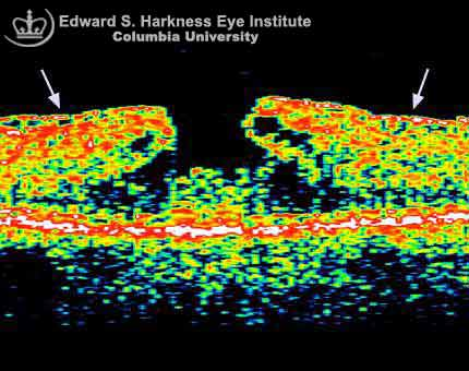 Macular pseudohole and the corresponding OCT study. Note the overlying epiretinal membrane which causes wrinkling of the overlying retina