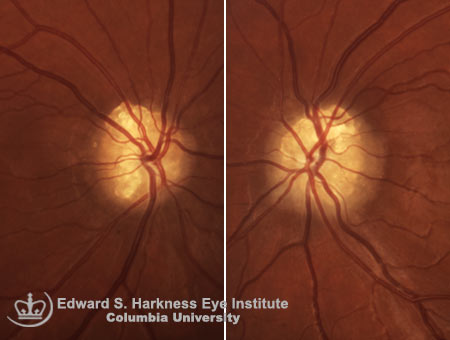 Bilateral superficial optic nerve drusen
