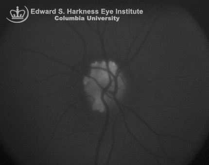 Superficial optic nerve drusen demonstrating autofluorescence.