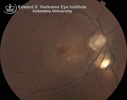 Optic disc pit at the temporal margin associated with serous macular detachment as clearly shown by the OCT image.