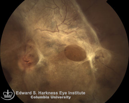 Advanced proliferative diabetic retinopathy.