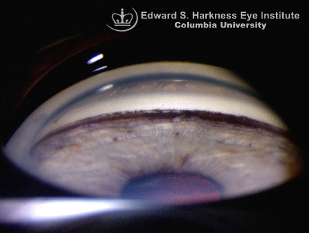 Gonioscopy demonstrates a noticeable band of dark pigment (delineating the pigment-laden trabecular meshwork).