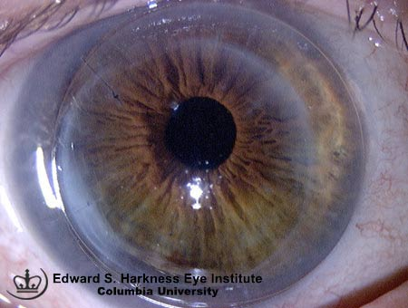 Astigmatism post penetrating keratoplasty is satisfactorily corrected with contact lens.