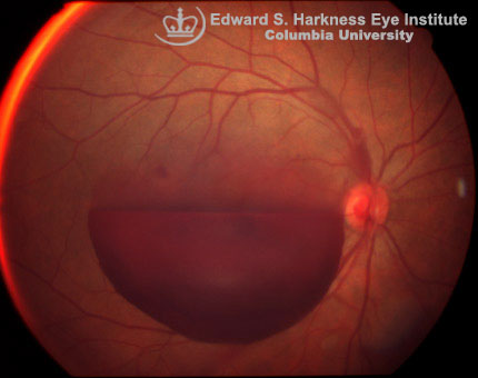 Fundus photograph and fluorescein angiogram of preretinal hemorrhage.