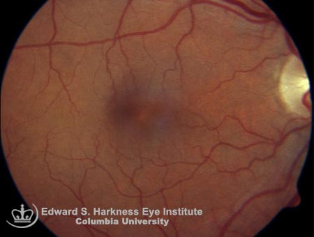 Pseudophakic cystoid macular edema demonstrating obscuration of macular detail.