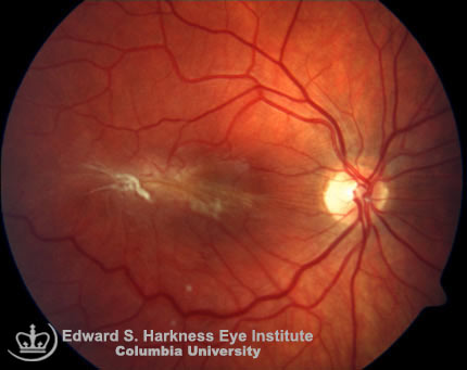 Opaque membrane obscures the visibility of the macula and drags the paramacular vessels.