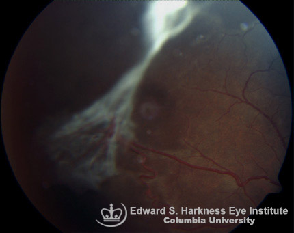 "Stage 3 sickle cell peripheral proliferative retinopathy with a ""seafan"" neovascularization and fibrovascular proliferation. Fluorescein angiogram demonstrating arteriolar-venular anastomoses at the junction of perfused and nonperfused retina and dye leakage."