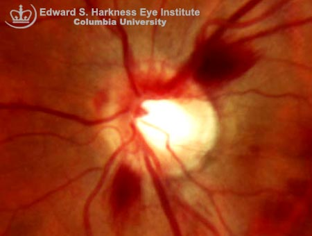 Splinter Optic Disc Hemorrhages