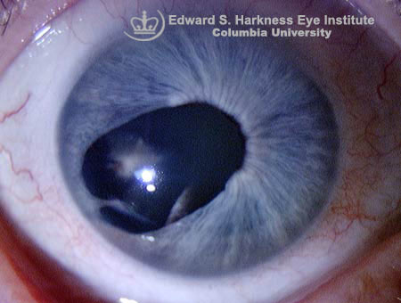 Traumatic iris coloboma associated with localized lens opacity.