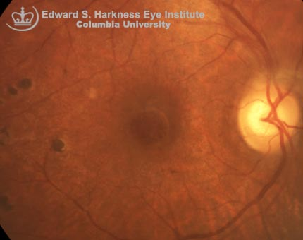 Color photograph of the right fundus demonstrates a pseudohole. Intraretinal cystic changes caused by the vitreoretinal traction become apparent in the red-free image. OCT scan demonstrates the incomplete vitreous separation with vitreous attachment to the perifoveal retina.